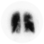 Lung Scintigraphy